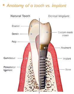 Anatomy of a tooth ver. implant